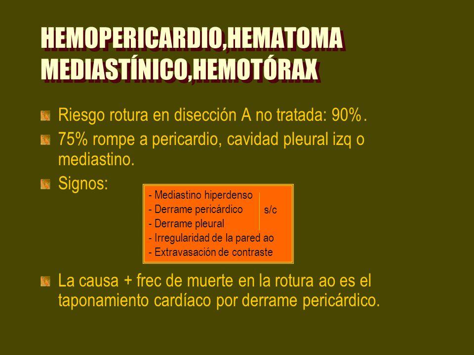 HEMOPERICARDIO,HEMATOMA MEDIASTÍNICO,HEMOTÓRAX Riesgo rotura en disección A no tratada: 90%. 75% rompe a pericardio, cavidad pleural izq o mediastino.