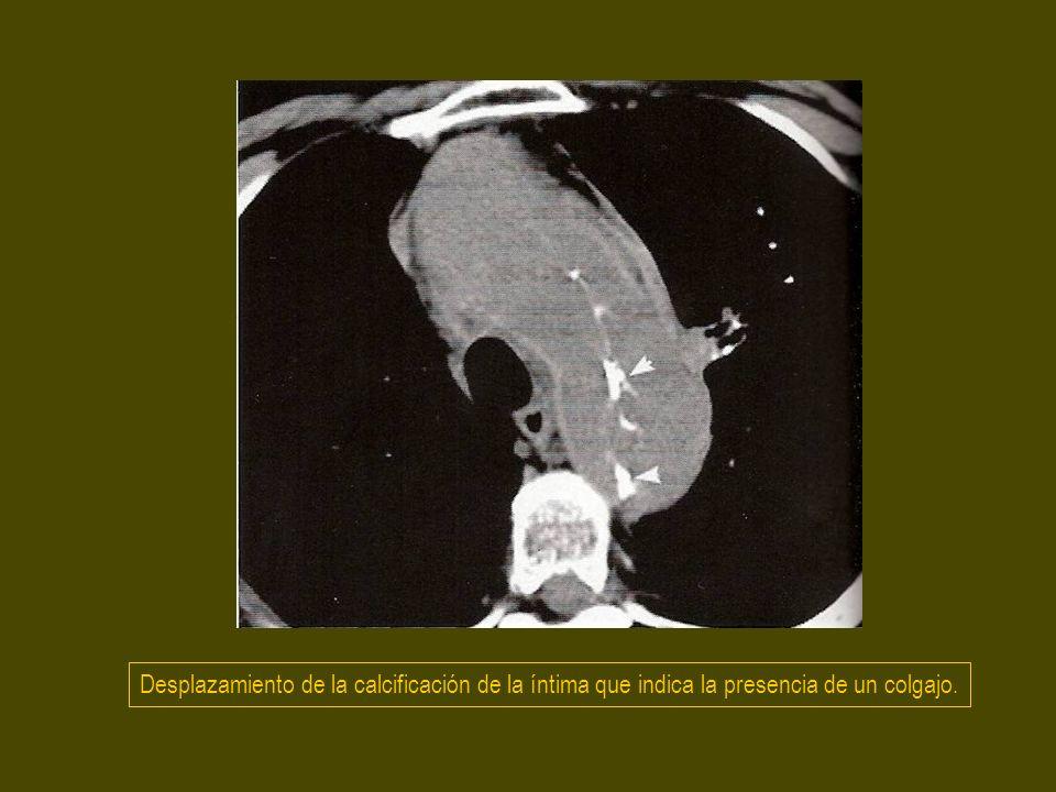 Rotura de disección A a través de la raiz de las a.pulmonares.