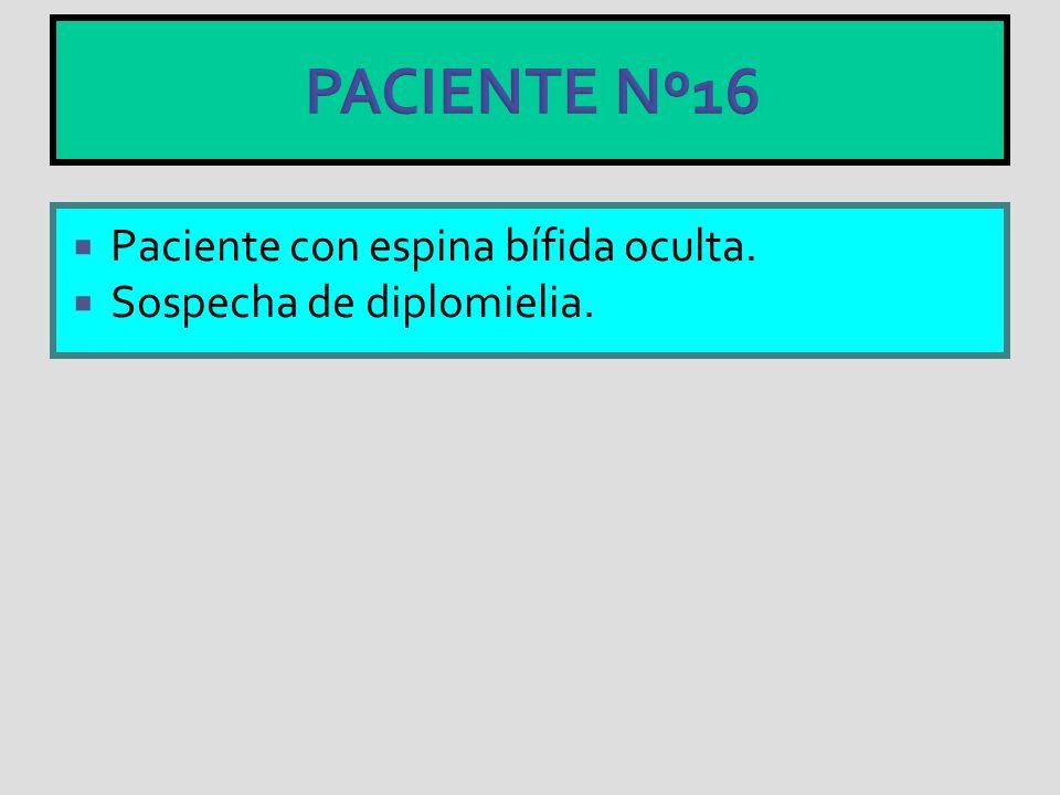 PACIENTE Nº16 Paciente con espina bífida oculta. Sospecha de diplomielia.