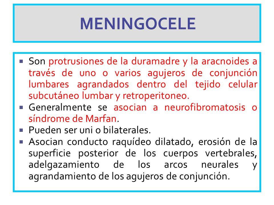 MENINGOCELE Son protrusiones de la duramadre y la aracnoides a través de uno o varios agujeros de conjunción lumbares agrandados dentro del tejido cel