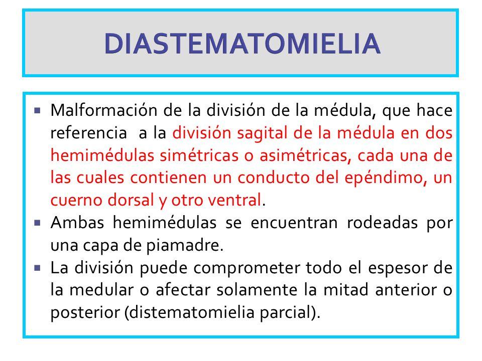 DIASTEMATOMIELIA Malformación de la división de la médula, que hace referencia a la división sagital de la médula en dos hemimédulas simétricas o asim