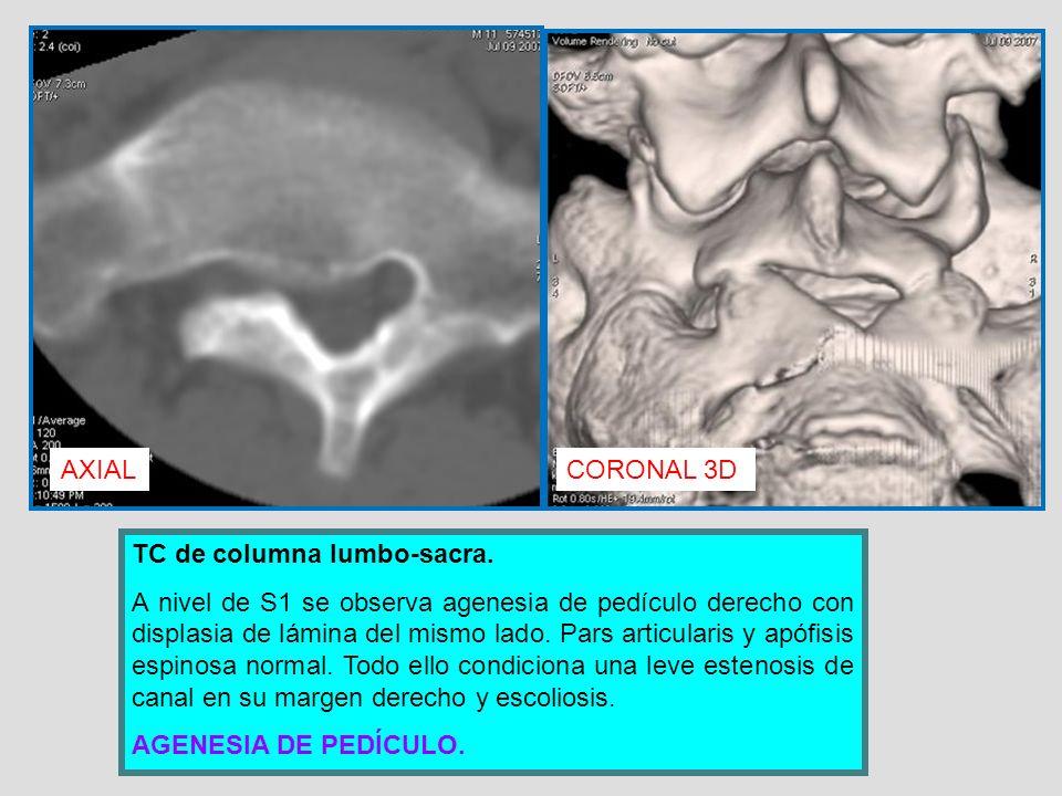 AXIALCORONAL 3D TC de columna lumbo-sacra. A nivel de S1 se observa agenesia de pedículo derecho con displasia de lámina del mismo lado. Pars articula