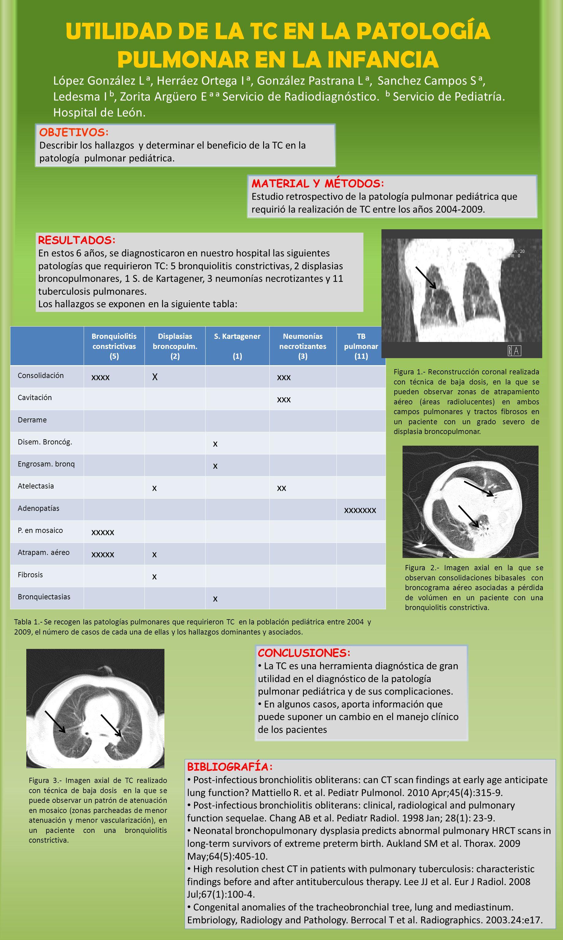 Bronquiolitis constrictivas (5) Displasias broncopulm.