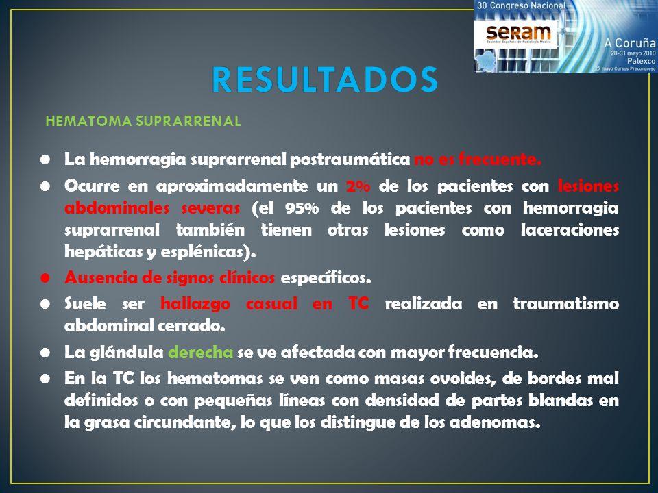 ADENOCARCINOMA SUPRARRENAL CASO 7.TC abdominal con contraste intravenoso de la misma paciente.