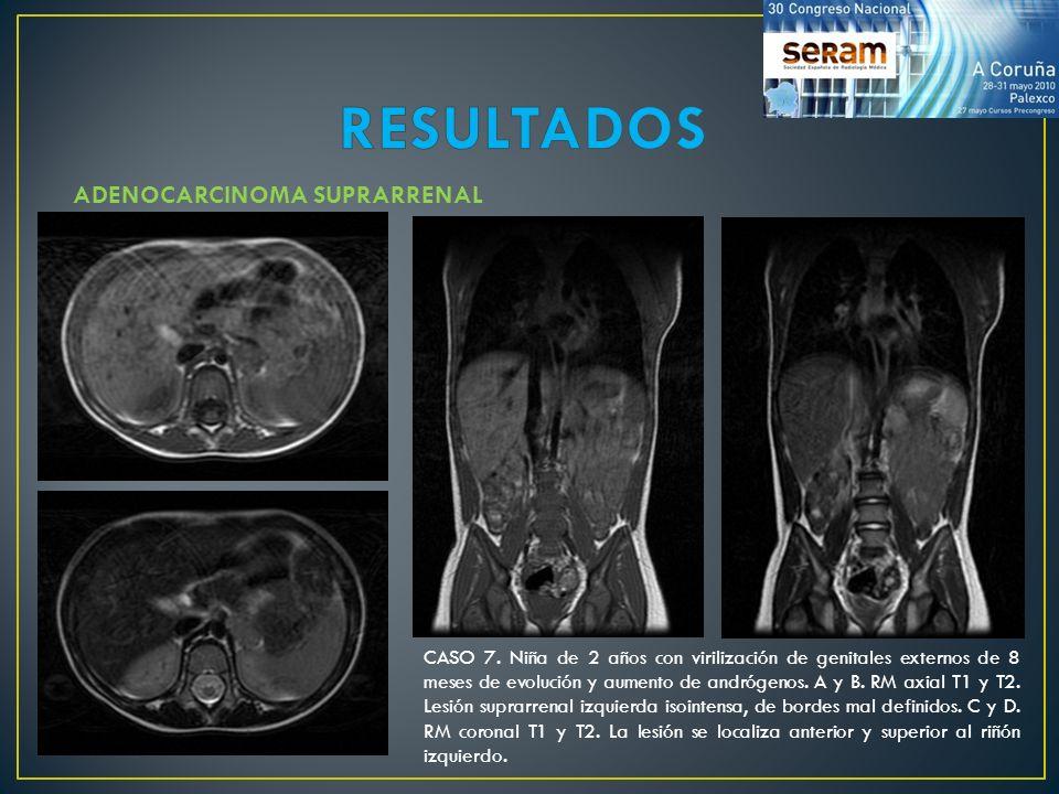 CASO 7. Niña de 2 años con virilización de genitales externos de 8 meses de evolución y aumento de andrógenos. A y B. RM axial T1 y T2. Lesión suprarr