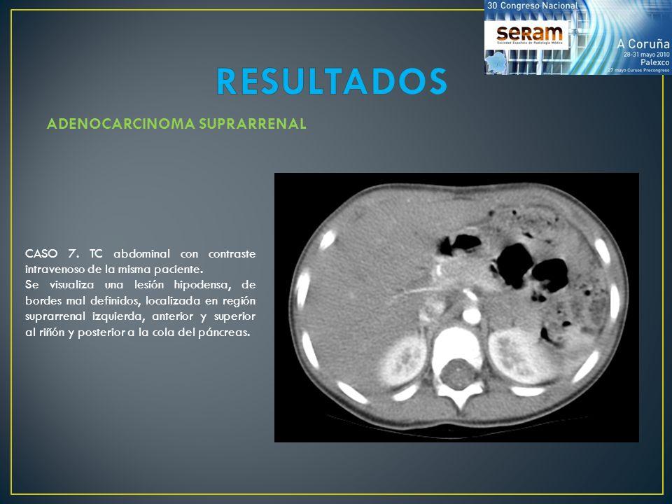 ADENOCARCINOMA SUPRARRENAL CASO 7. TC abdominal con contraste intravenoso de la misma paciente. Se visualiza una lesión hipodensa, de bordes mal defin