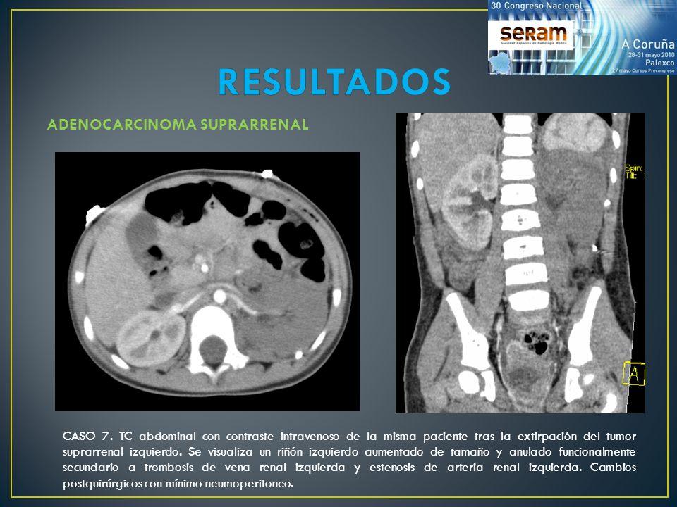 ADENOCARCINOMA SUPRARRENAL CASO 7. TC abdominal con contraste intravenoso de la misma paciente tras la extirpación del tumor suprarrenal izquierdo. Se