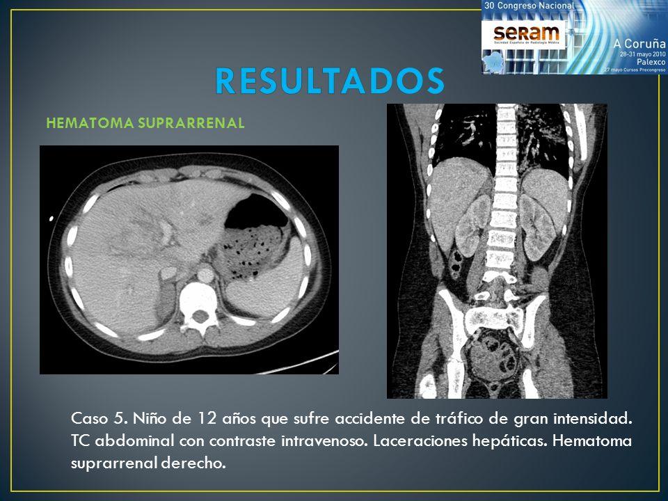 Caso 5. Niño de 12 años que sufre accidente de tráfico de gran intensidad. TC abdominal con contraste intravenoso. Laceraciones hepáticas. Hematoma su