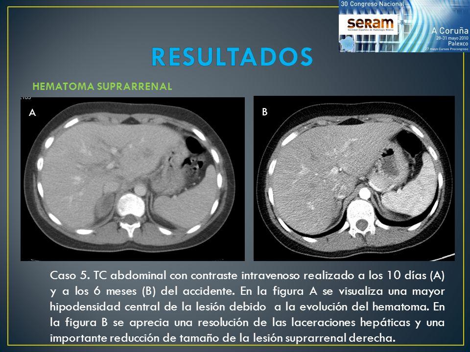 Caso 5. TC abdominal con contraste intravenoso realizado a los 10 días (A) y a los 6 meses (B) del accidente. En la figura A se visualiza una mayor hi