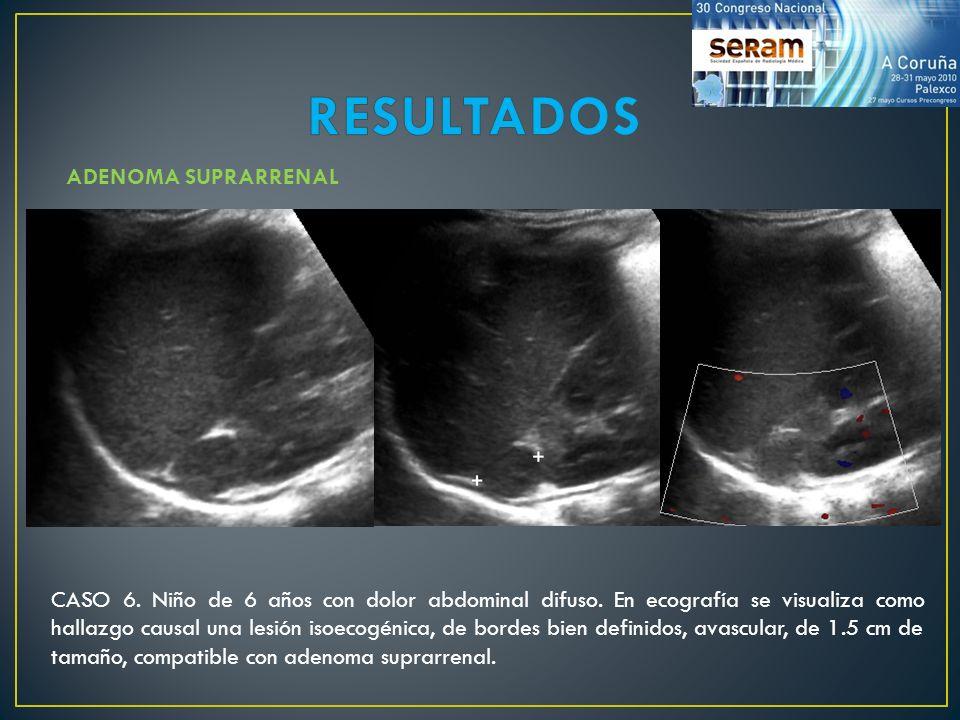 CASO 6. Niño de 6 años con dolor abdominal difuso. En ecografía se visualiza como hallazgo causal una lesión isoecogénica, de bordes bien definidos, a