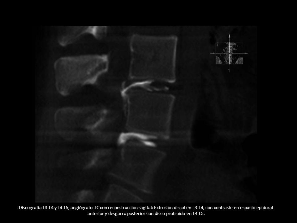Discografía L3-L4 y L4-L5, angiógrafo-TC con reconstrucción sagital: Extrusión discal en L3-L4, con contraste en espacio epidural anterior y desgarro