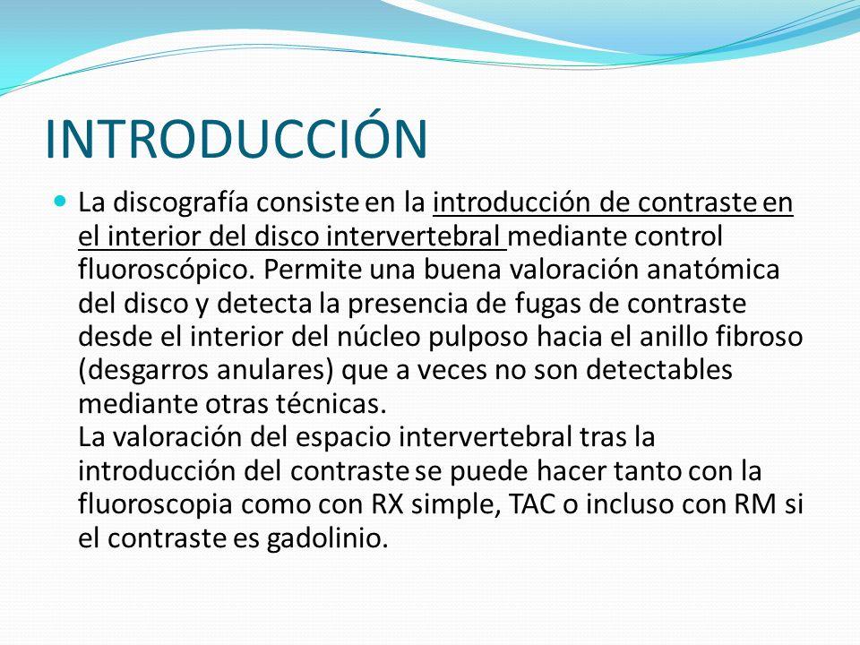 INTRODUCCIÓN La discografía consiste en la introducción de contraste en el interior del disco intervertebral mediante control fluoroscópico. Permite u