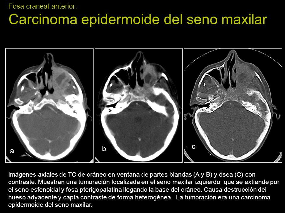 Fosa craneal anterior: Carcinoma epidermoide del seno maxilar Imágenes axiales de TC de cráneo en ventana de partes blandas (A y B) y ósea (C) con con