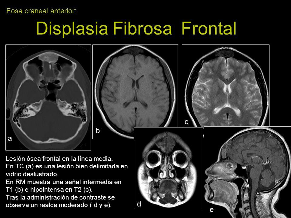 Fosa craneal anterior: Displasia Fibrosa Frontal Lesión ósea frontal en la línea media. En TC (a) es una lesión bien delimitada en vidrio deslustrado.