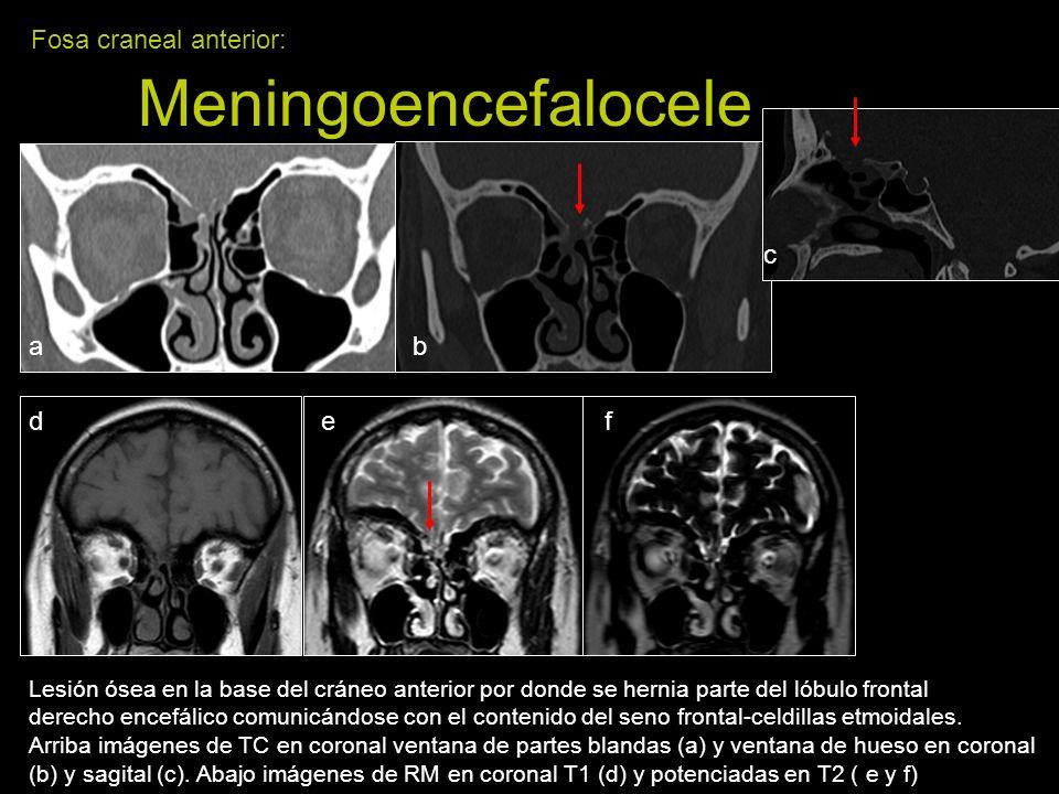 Fosa craneal anterior: Meningoencefalocele Lesión ósea en la base del cráneo anterior por donde se hernia parte del lóbulo frontal derecho encefálico