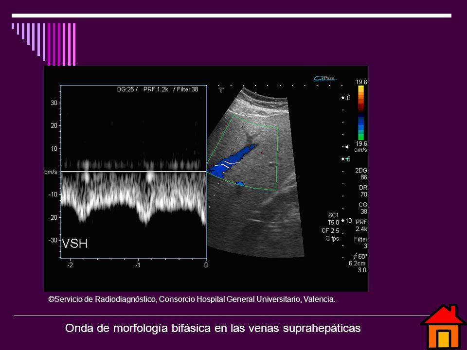 ©Servicio de Radiodiagnóstico, Consorcio Hospital General Universitario, Valencia. Onda de morfología bifásica en las venas suprahepáticas
