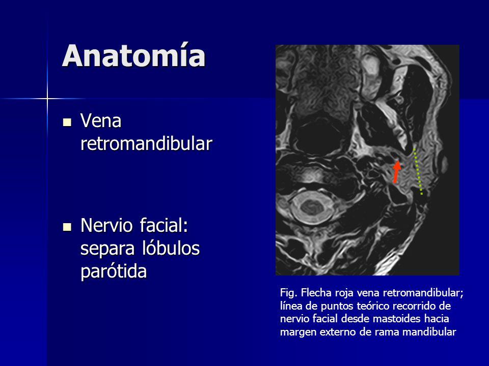 Anatomía Vena retromandibular Vena retromandibular Nervio facial: separa lóbulos parótida Nervio facial: separa lóbulos parótida Fig. Flecha roja vena
