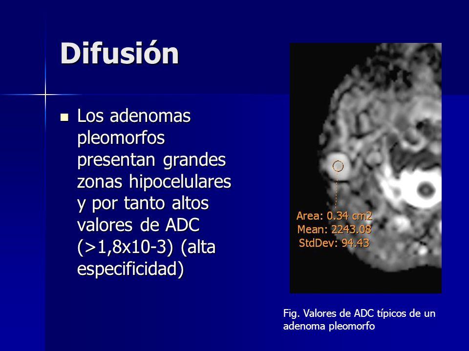 Difusión Los adenomas pleomorfos presentan grandes zonas hipocelulares y por tanto altos valores de ADC (>1,8x10-3) (alta especificidad) Los adenomas