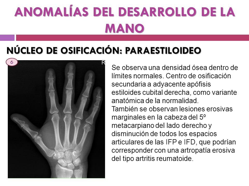 ANOMALÍAS DEL DESARROLLO DE LA MANO NÚCLEO DE OSIFICACIÓN: PARAESTILOIDEO Se observa una densidad ósea dentro de límites normales. Centro de osificaci