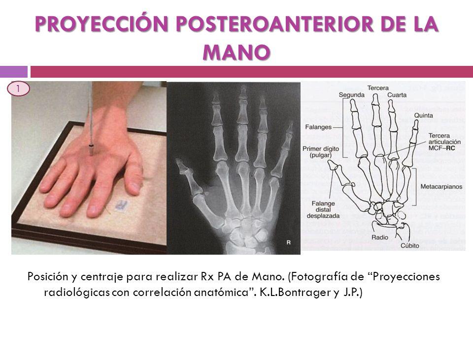 PROYECCIÓN POSTEROANTERIOR DE LA MANO Posición y centraje para realizar Rx PA de Mano. (Fotografía de Proyecciones radiológicas con correlación anatóm