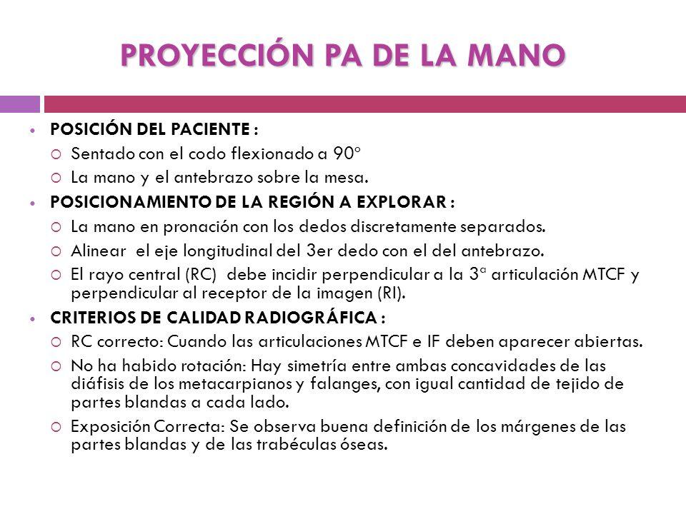 Posición y centraje para realizar Rx PA de Mano.