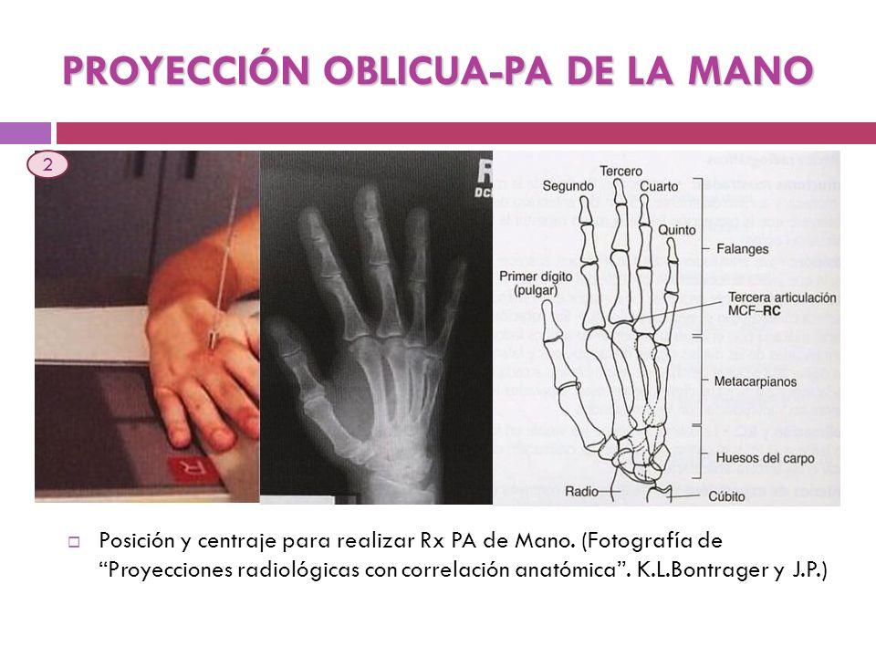 Posición y centraje para realizar Rx PA de Mano. (Fotografía de Proyecciones radiológicas con correlación anatómica. K.L.Bontrager y J.P.) PROYECCIÓN