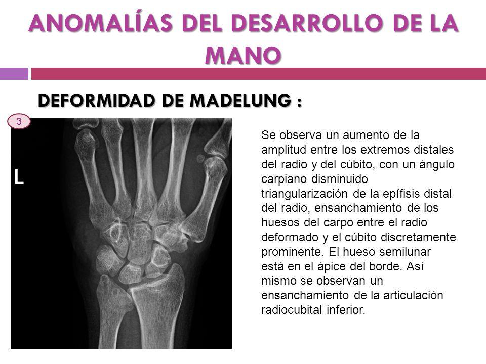 ANOMALÍAS DEL DESARROLLO DE LA MANO BRAQUIDACTILIA : Se observa un acortamiento de las falanges medias del 2º al 5º dedo.