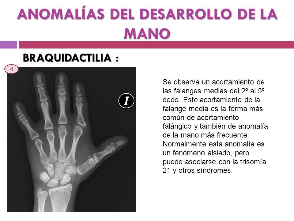 ANOMALÍAS DEL DESARROLLO DE LA MANO BRAQUIDACTILIA : Se observa un acortamiento de las falanges medias del 2º al 5º dedo. Este acortamiento de la fala