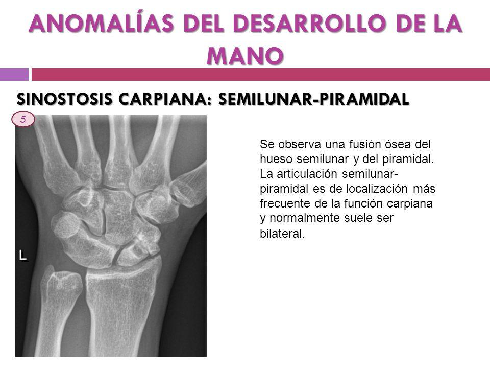 ANOMALÍAS DEL DESARROLLO DE LA MANO SINOSTOSIS CARPIANA: SEMILUNAR-PIRAMIDAL Se observa una fusión ósea del hueso semilunar y del piramidal. La articu