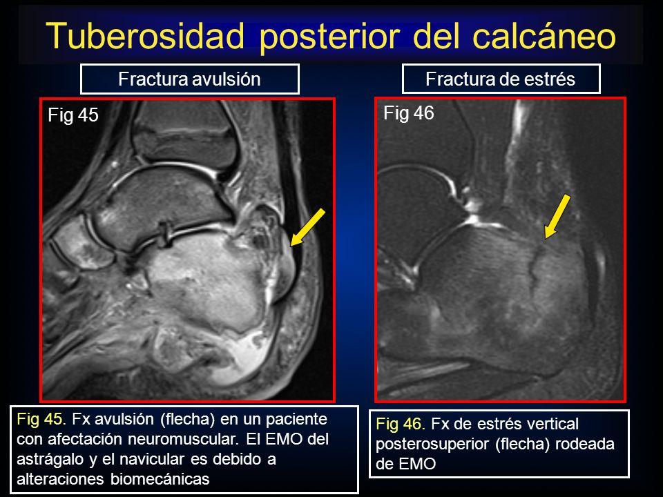 Fractura avulsión Fractura de estrés Fig 45. Fx avulsión (flecha) en un paciente con afectación neuromuscular. El EMO del astrágalo y el navicular es