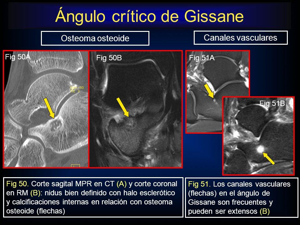 Fig 51. Los canales vasculares (flechas) en el ángulo de Gissane son frecuentes y pueden ser extensos (B) Osteoma osteoide Canales vasculares Fig 50.