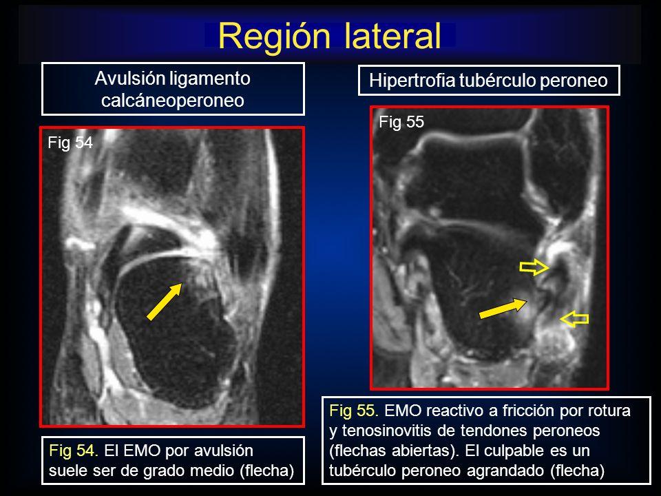 Región lateral Avulsión ligamento calcáneoperoneo Fig 54. El EMO por avulsión suele ser de grado medio (flecha) Fig 54 Hipertrofia tubérculo peroneo F