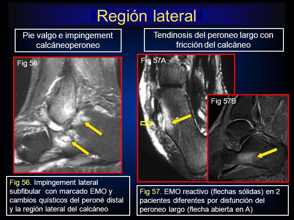 Región lateral Fig 57A Tendinosis del peroneo largo con fricción del calcáneo Pie valgo e impingement calcáneoperoneo Fig 56. Impingement lateral subf