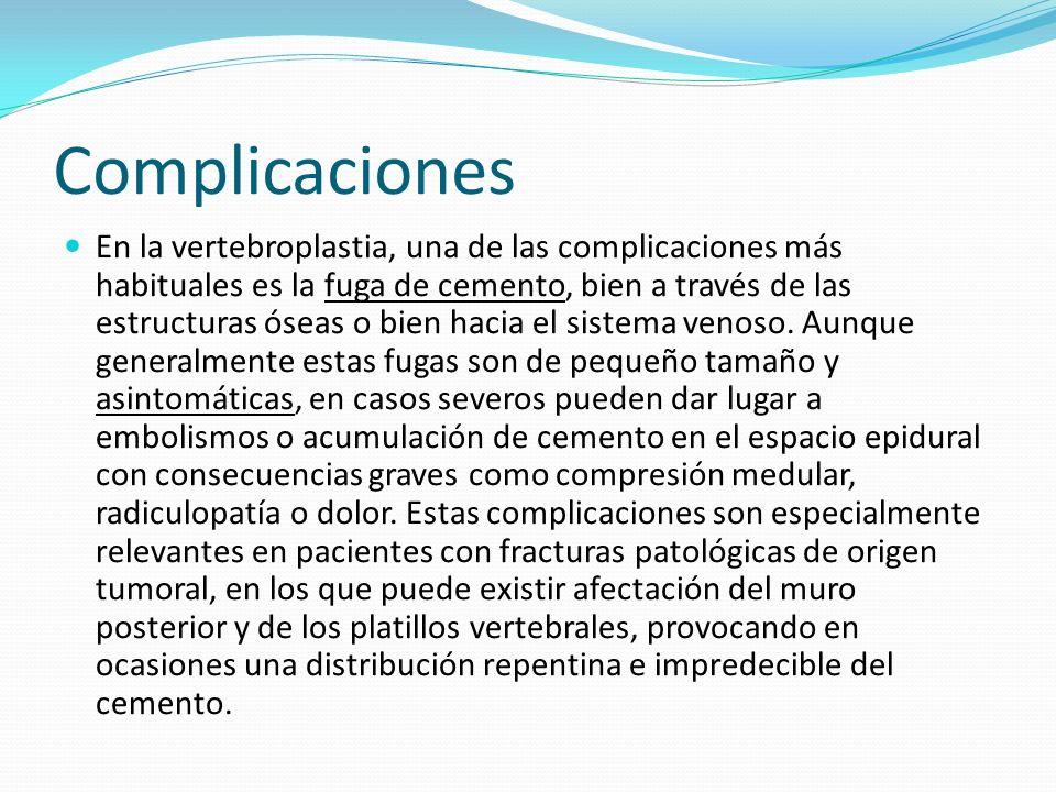 Complicaciones En la vertebroplastia, una de las complicaciones más habituales es la fuga de cemento, bien a través de las estructuras óseas o bien ha