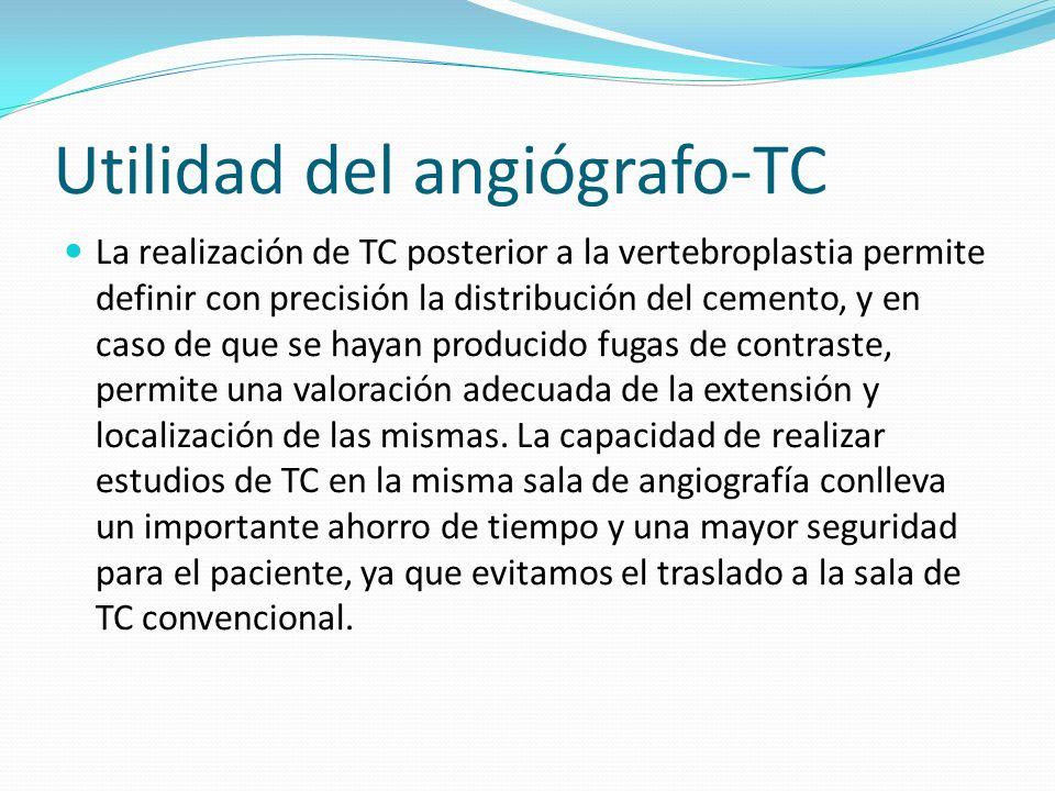 Utilidad del angiógrafo-TC La realización de TC posterior a la vertebroplastia permite definir con precisión la distribución del cemento, y en caso de