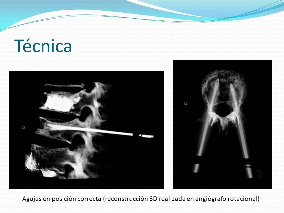 Técnica Ejemplos de mala colocación de las agujas visto con angiógrafo-TC Punción medial debido a pedículo pequeñoPunción intracanal