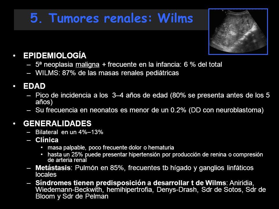5. Tumores renales: Wilms EPIDEMIOLOGÍA –5ª neoplasia maligna + frecuente en la infancia: 6 % del total –WILMS: 87% de las masas renales pediátricas E