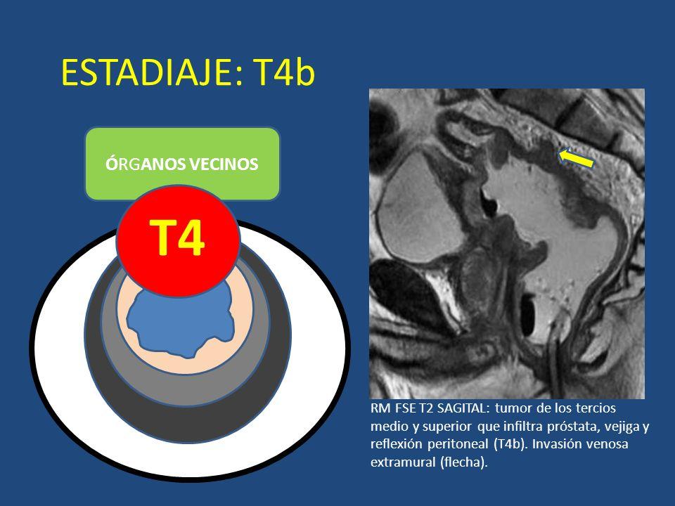 ESTADIAJE: T4b ÓRGANOS VECINOS T4 LUZ RM FSE T2 SAGITAL: tumor de los tercios medio y superior que infiltra próstata, vejiga y reflexión peritoneal (T