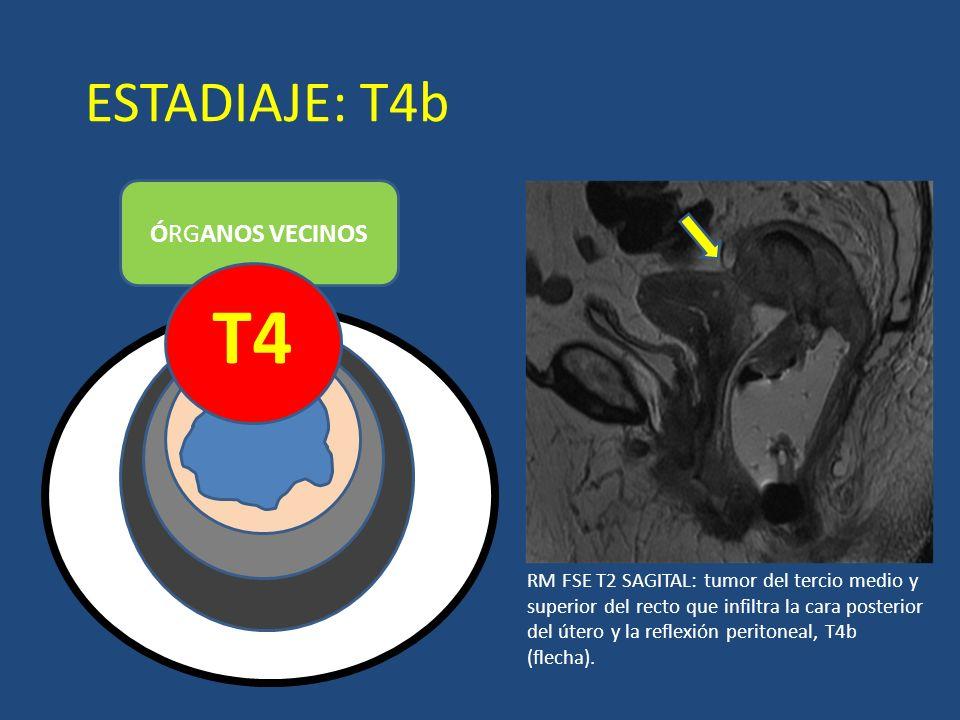 ESTADIAJE: T4b ÓRGANOS VECINOS T4 LUZ RM FSE T2 SAGITAL: tumor del tercio medio y superior del recto que infiltra la cara posterior del útero y la ref
