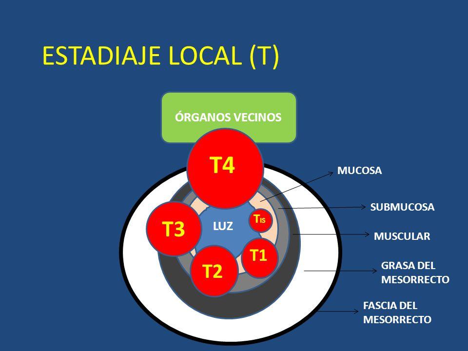 ESTADIAJE LOCAL (T) ÓRGANOS VECINOS T4 T1 T2 T3 T IS LUZ MUCOSA SUBMUCOSA MUSCULAR GRASA DEL MESORRECTO FASCIA DEL MESORRECTO