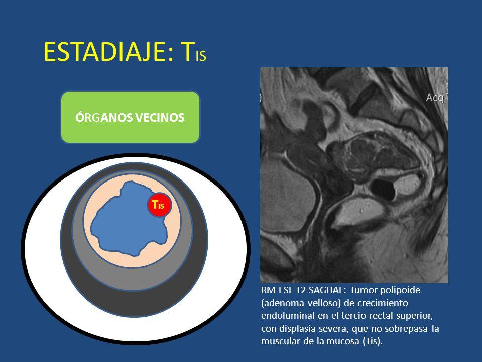 ESTADIAJE: T IS ÓRGANOS VECINOS T IS LUZ RM FSE T2 SAGITAL: Tumor polipoide (adenoma velloso) de crecimiento endoluminal en el tercio rectal superior,