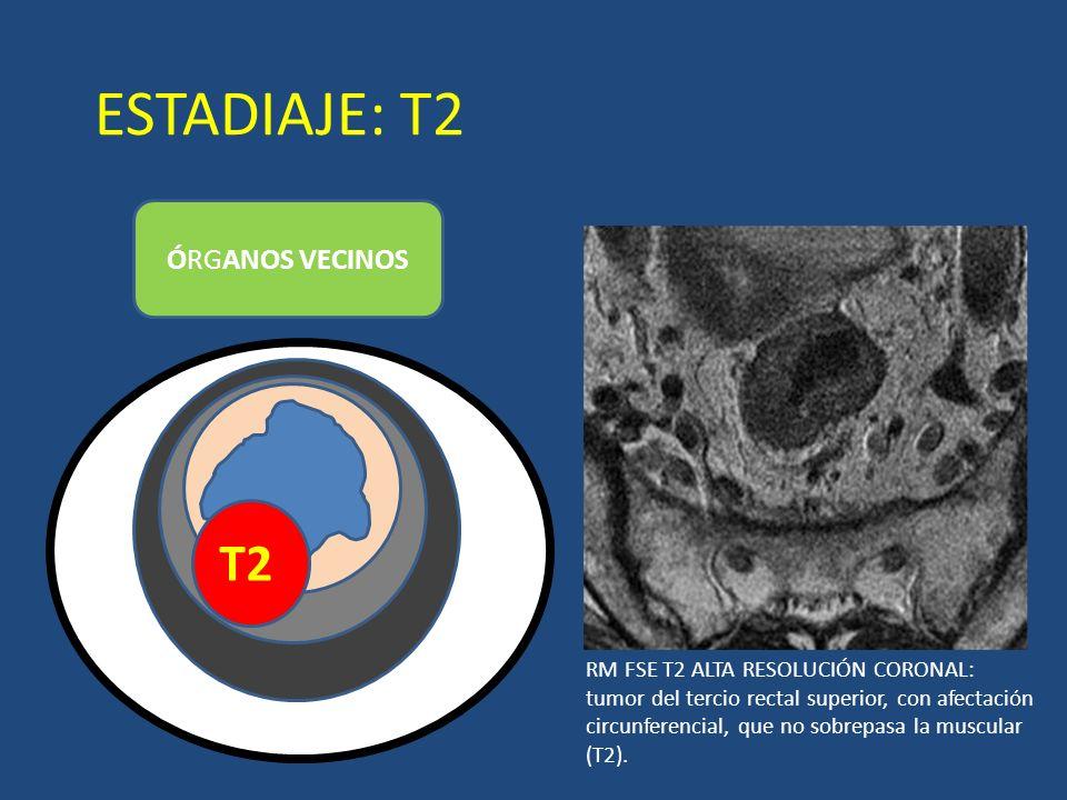 ESTADIAJE: T2 ÓRGANOS VECINOS T2 LUZ RM FSE T2 ALTA RESOLUCIÓN CORONAL: tumor del tercio rectal superior, con afectación circunferencial, que no sobre