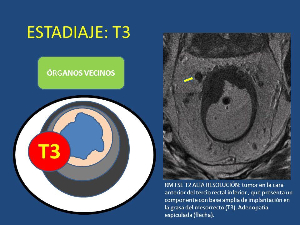 ESTADIAJE: T3 ÓRGANOS VECINOS T3 LUZ RM FSE T2 ALTA RESOLUCIÓN: tumor en la cara anterior del tercio rectal inferior, que presenta un componente con b