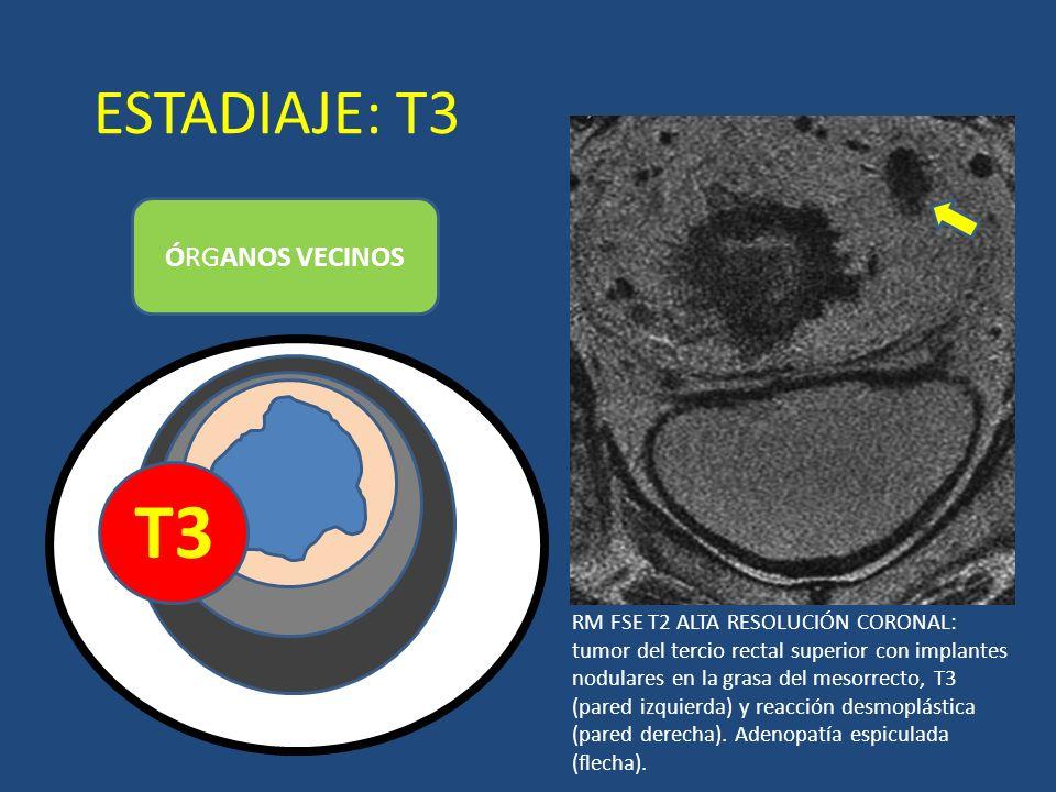 ESTADIAJE: T3 ÓRGANOS VECINOS T3 LUZ RM FSE T2 ALTA RESOLUCIÓN CORONAL: tumor del tercio rectal superior con implantes nodulares en la grasa del mesor