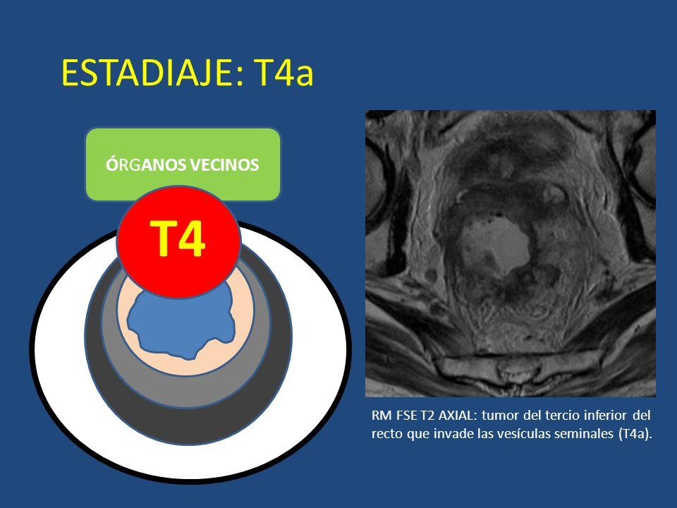 ESTADIAJE: T4a ÓRGANOS VECINOS T4 LUZ RM FSE T2 AXIAL: tumor del tercio inferior del recto que invade las vesículas seminales (T4a).