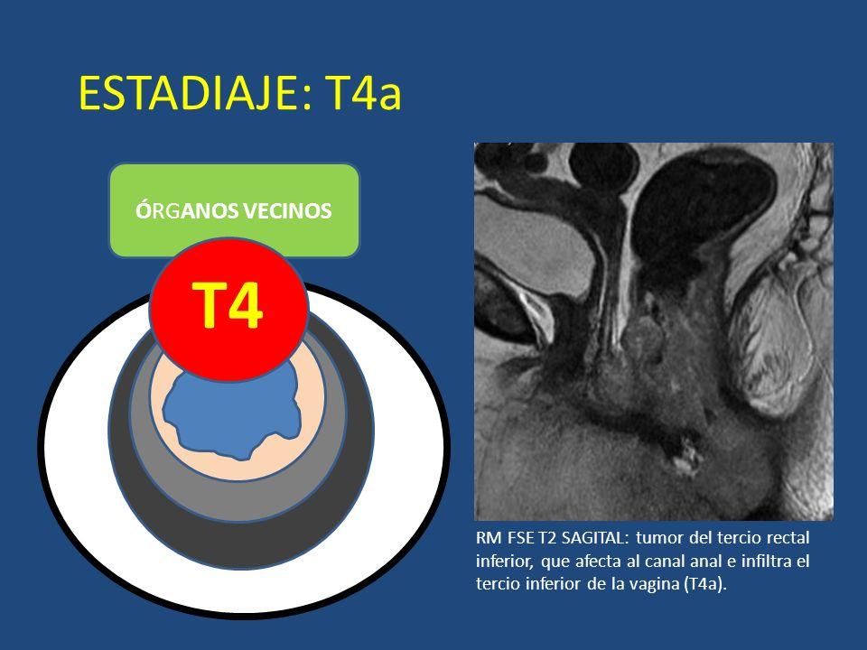 ESTADIAJE: T4a ÓRGANOS VECINOS T4 LUZ RM FSE T2 SAGITAL: tumor del tercio rectal inferior, que afecta al canal anal e infiltra el tercio inferior de l