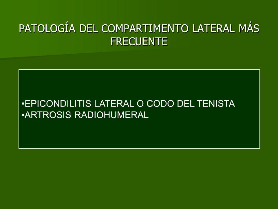 EPICONDILITIS LATERAL Es un síndrome de sobreuso del tendón extensor común.