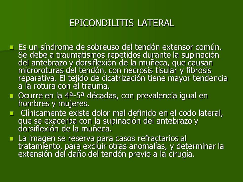 EPICONDILITIS LATERAL Los hallazgos en ecografía en escala de grises incluyen: Los hallazgos en ecografía en escala de grises incluyen: –Engrosamiento del tendón –Hipoecogenicidad difusa y pérdida del patrón fibrilar normal.