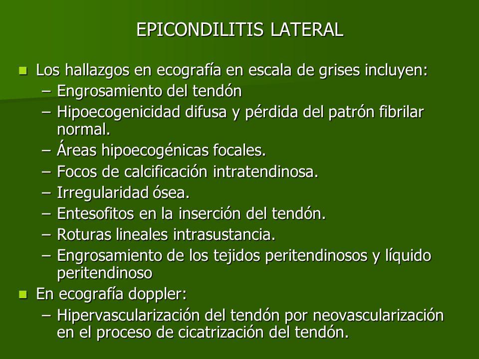 EPICONDILITIS LATERAL Proyecciones longitudinales del tendón extensor común con hallazgos de epicondilitis: tendón engrosado e hipoecogénico (Fig.1), comparación con del lado patológico con el codo sano (Fig.