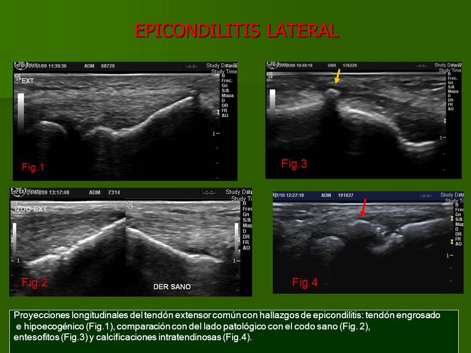 EPICONDILITIS LATERAL Proyecciones longitudinales del tendón extensor común con hallazgos de epicondilitis: áreas anecoicas que representan desgarros parciales (Fig.